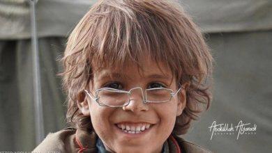 "Photo of مزاد على ""نظارة"" طفل نازح يمني يحقق 2.5 مليون ريال"