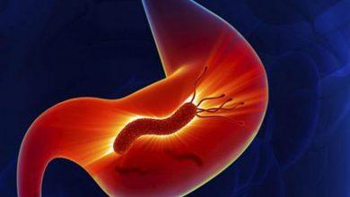 Photo of جرثومة المعدة مسبباتها وأعراضها وطرق الوقاية منها