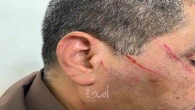 """Photo of الطبيب """"عوض"""" يكشف لـ""""سما الوطن"""" حيثيات اعتداء مواطن على أحد الأطباء في مستشفى الشفاء بغزة"""
